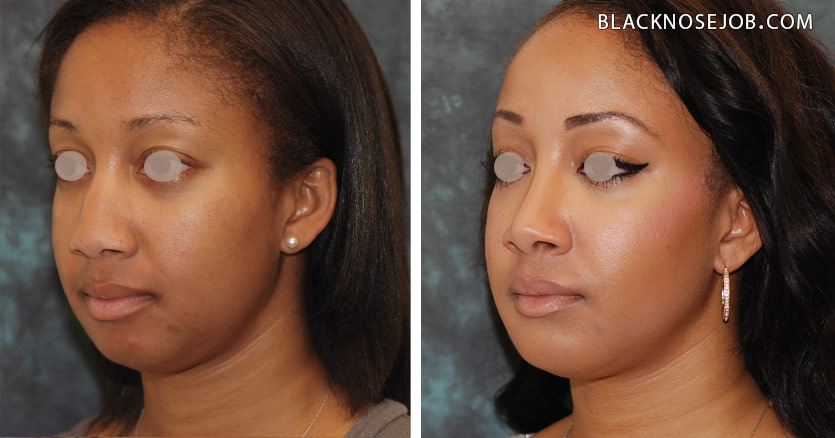 Figure e,f: African American rhinoplasty patient with well balanced facial proportions.