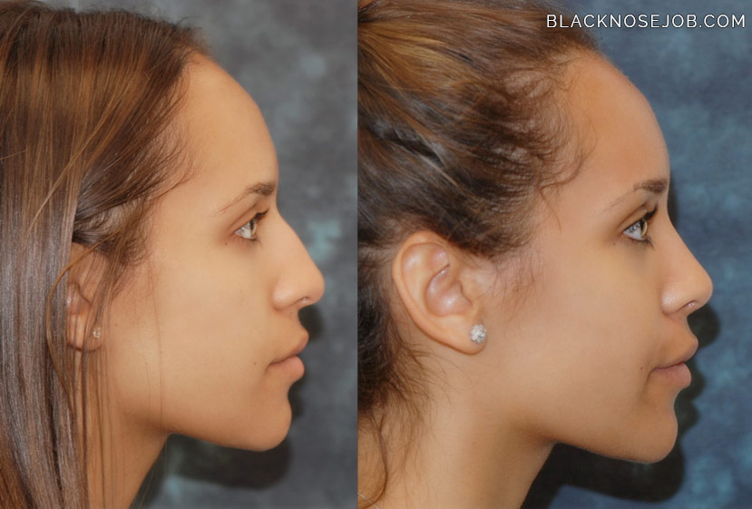 african american rhinoplasty before after