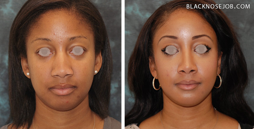Figure c,d: African American rhinoplasty patient with improvement in harmony between the nose and chin.
