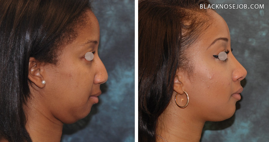 Figure a,b: African American rhinoplasty patient profile view with significant improvement in harmony between the nose and chin and overall facial profile.
