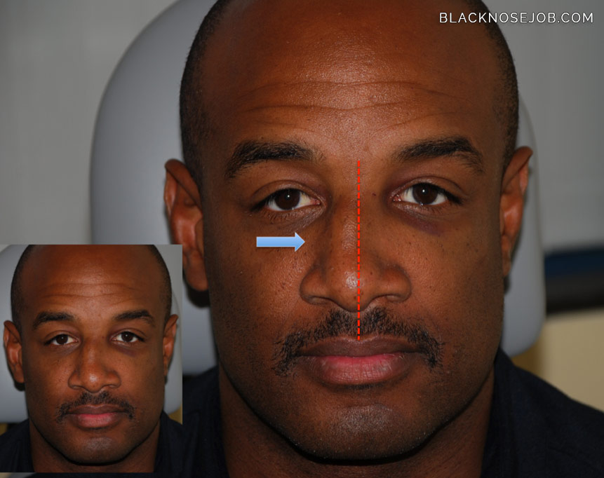 black male rhinoplasty
