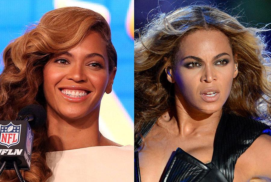Beyonce Nose Rhinoplasty
