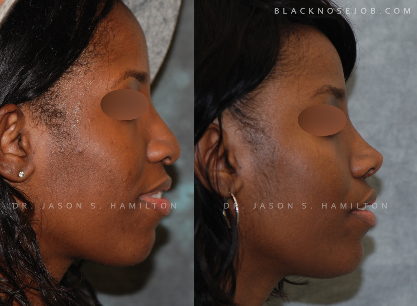 ethnic rhinoplasty before after