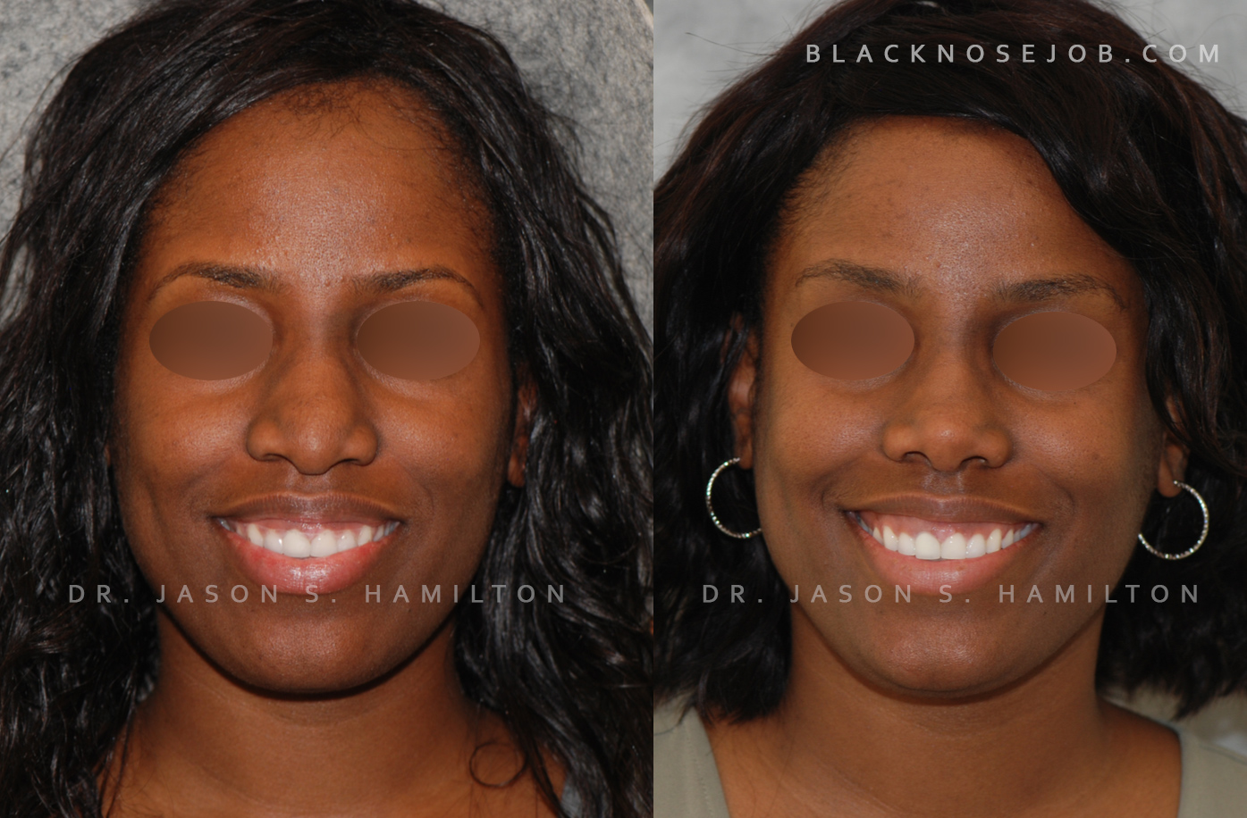 african american nose job before after
